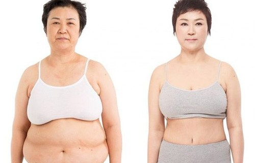 3d liposuction results at jk plastic surgery clinic korea
