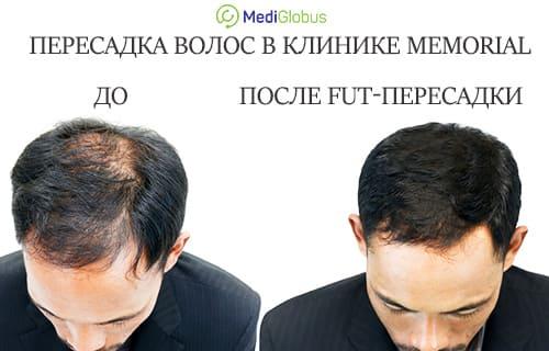 FUT и FUE пересадка волос в клинике Мемориал с быстрым результатом