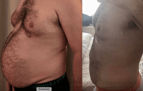 Before and after of a weight loss surgery