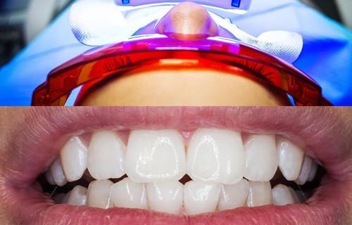 отбеливание зубов в лазурит чехия