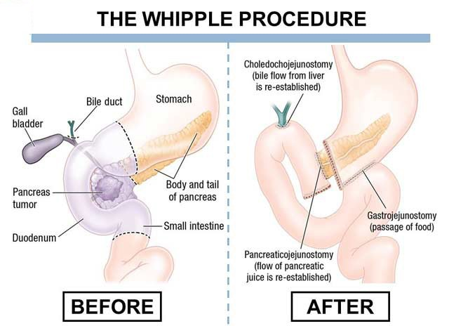 Pancreatic cancer operation: surgical treatment | MediGlobus