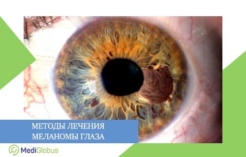 варианты лечения меланомы глаза за рубежом