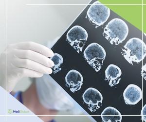лечение нервной системы в чехии