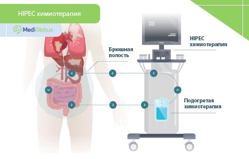 hipec химиотерпия при раке желудка