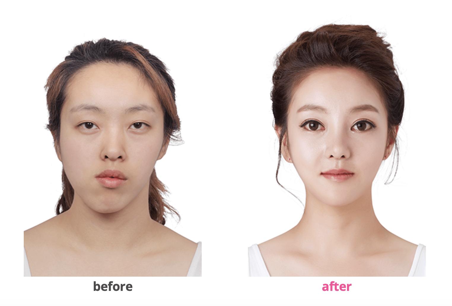 Пластическая хирургия в лучшей клинике Кореи фото