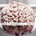 the best neurosurgery clinics