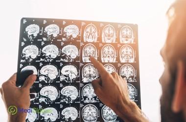 Стоимость лечения неврологических болезней в Австрии