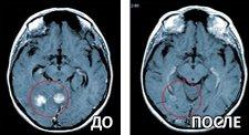Инновационные методы лечения рака