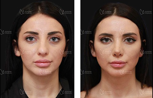 plastic surgery at estetik international