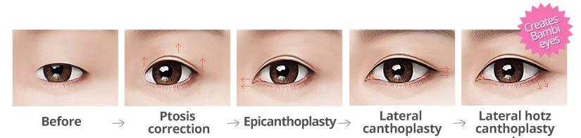Blepharoplasty in Korea