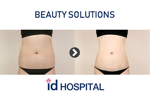 how to loose weight at id hospital