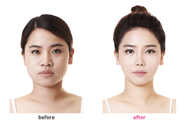 Face plastic surgery before and after photo