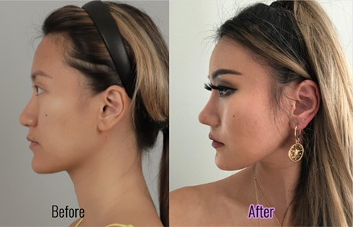 kerina wang made rhinoplasty