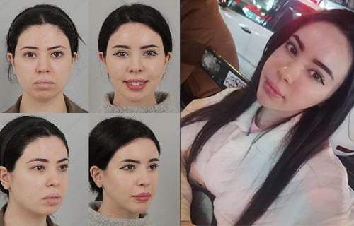 testimonail about plastic surgery at id hospital