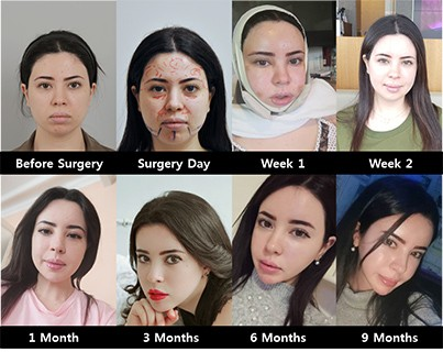 6 month after plastic surgery at id hospital