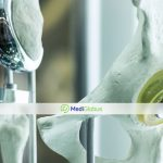 лучшие доктора-ортопеды в Европе