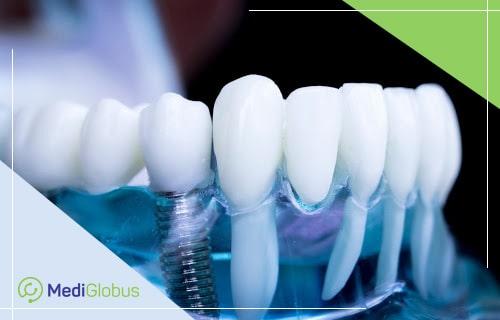 дентальная имплатантация в стоматологи за рубежом
