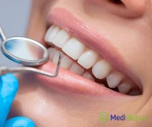 стоматология в турецких клиниках
