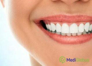 лечение зубов в турции