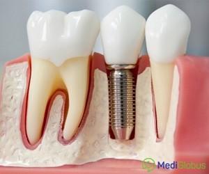 зубные имплантанты в испании