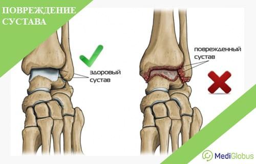 Deformant osteoartrita
