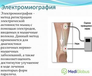 Leeches Prostate Vélemények