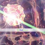 лечение опухоли мозга лазером