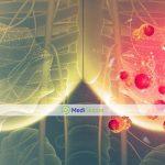 FDA одобрило новое лекарство для лечения рака груди 4 стадии