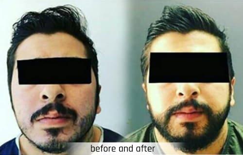adem and havva beard transplantation turkey istambul before and after