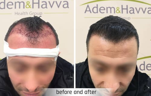 adem and havva hair transplantation turkey istambul before and after