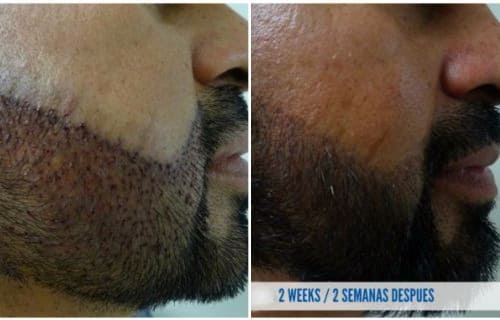 cosmed clinic hair transplant before after
