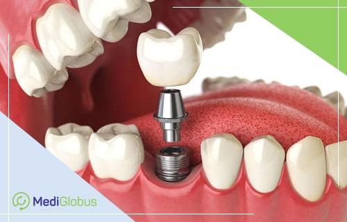 зубной имплант из титана