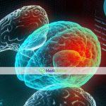 Как новый метод МРТ-HIFU поможет пациентам с тремором и болезнью Паркинсона?