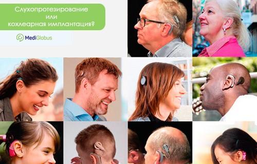 Что такое слуховой аппарат, кохлеарная имплантация, показания, противпоказания