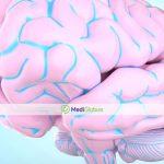 Методы лечения глиоматоза головного мозга у детей