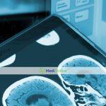 Обзор 4 перспективных методов для лечения рака головного мозга