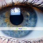 методы лазерной коррекции зрения за границей