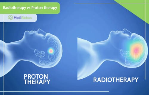 proton therapy treatment in spain