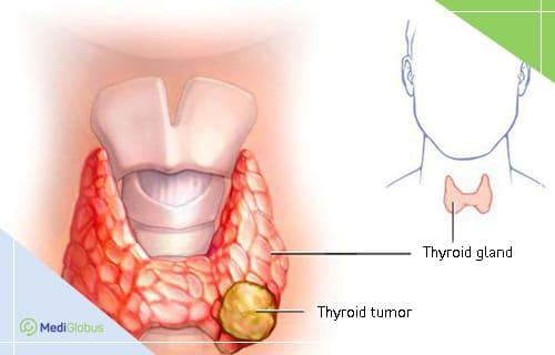 thyroid tumour treatment