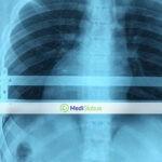 стоимость операции при воронкообразной грудной клетке